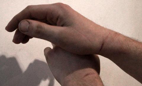Traces of handcuffs on Ilya Kapustin's hands